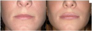 Aumento de labios: antes y después